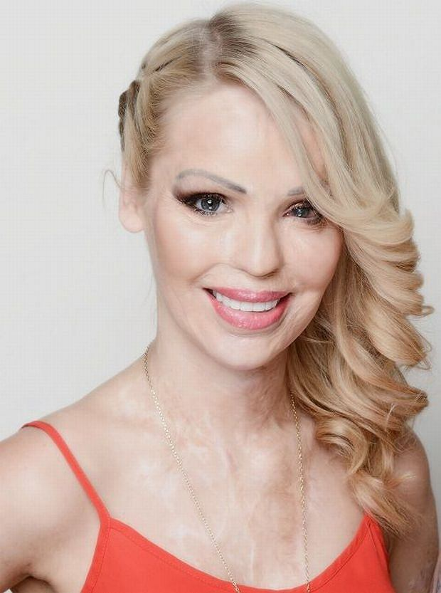 Katie Piper on TLC